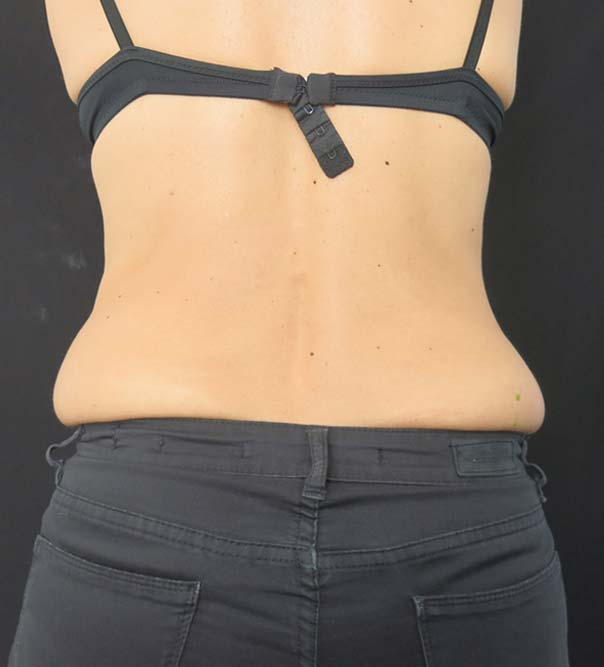 A lady with 'muffin top' before CoolSculpting