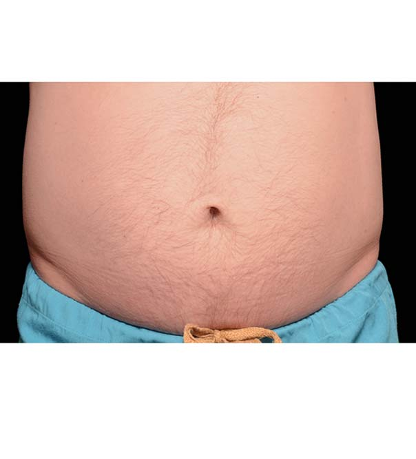 A man's stomach before fat freezing treatment