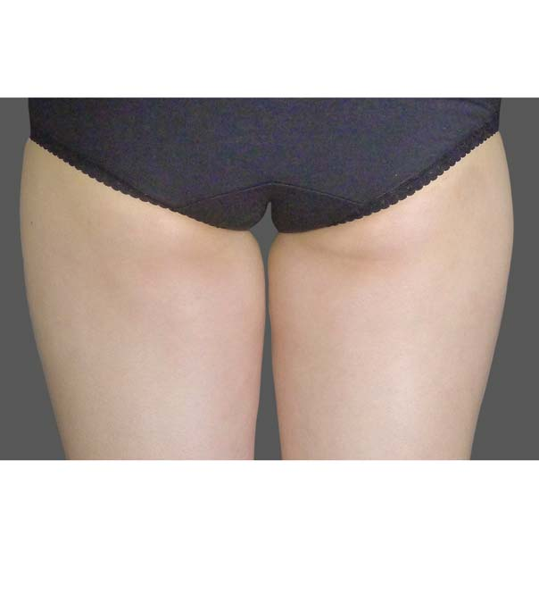 A lady's inner thighs before CoolSculpting treatment