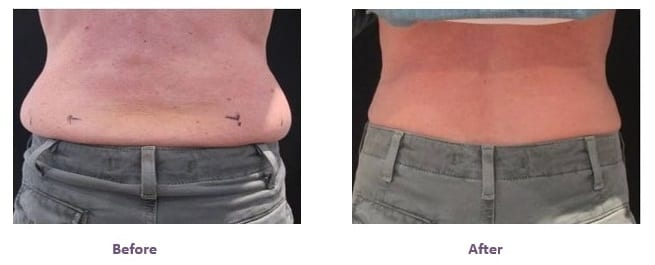 Coolsculpting before after results