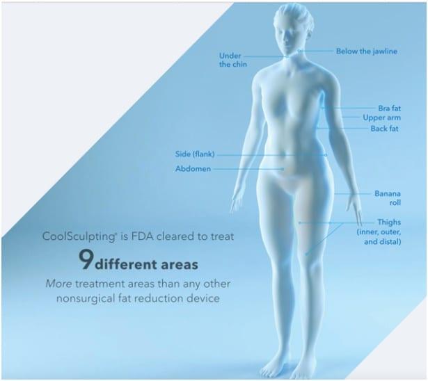 Coolsculpting elite treatment areas