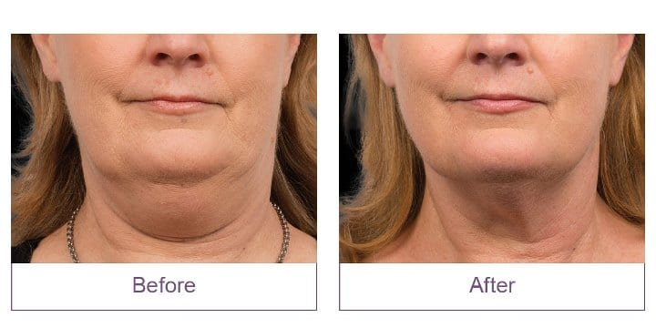 CoolSculpting Event Before and After Double Chin