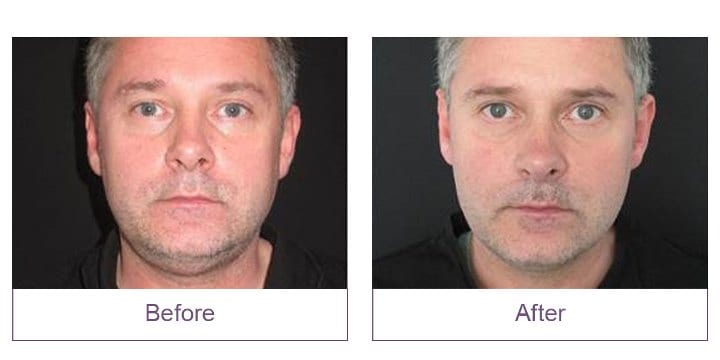 CoolSculpting Event Before and After Face