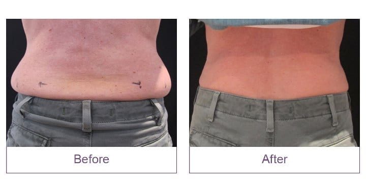 CoolSculpting Event Before and After Love Handles