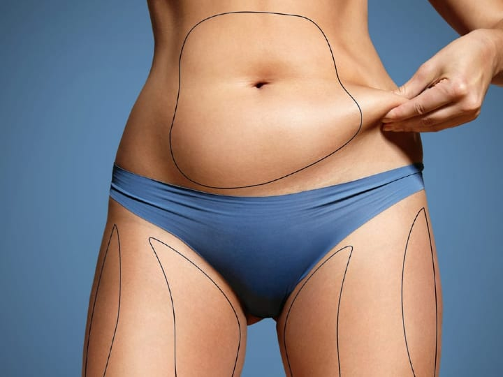 CoolSculpting v Liposuction Fat Removal