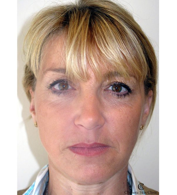 A lady after a full face rejuvenation using Juvederm and MD Codes