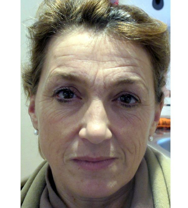 A before image of a lady prior to a full face rejuvenation