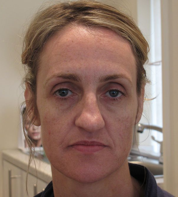 A lady before having full face rejuvenation with Juvederm
