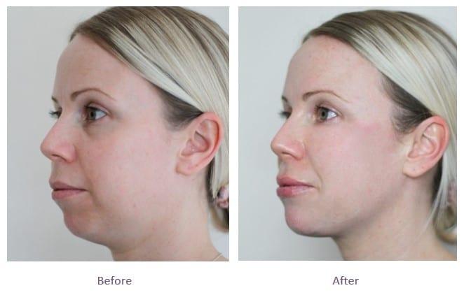 dermal fillers full face rejuvenation before after