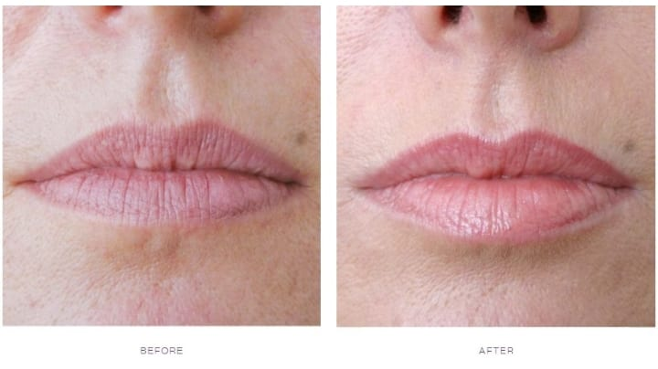 Dermal Fillers Smokers Lines Before and After