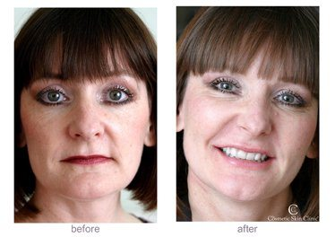 Restylane Dermal Fillers - Non-Surgical Face Lift