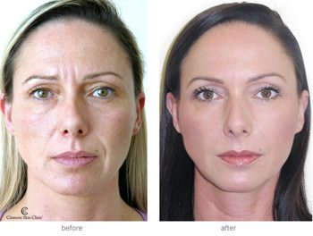 Restylane dermal fillers can be used to smooth out nose to mouth lines and marionettes