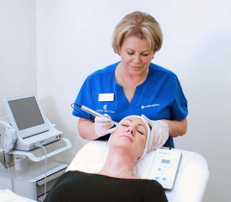 A lady undergoing treatment with a dermaroller
