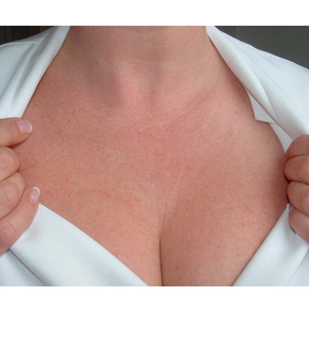 Tightened skin on the chest after treatment with Genuine Dermaroller