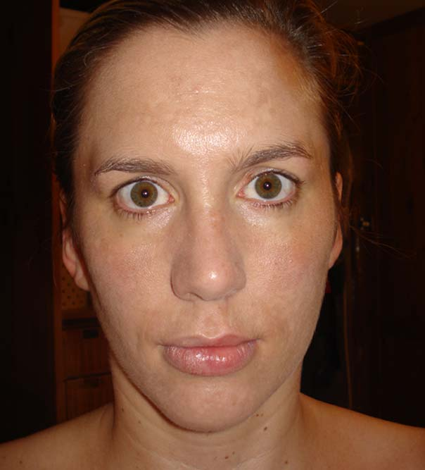 The face of a lady after Dermaroller treatment