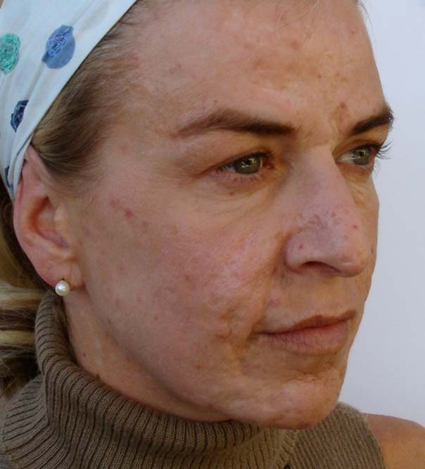 A lady with reduced facial scarring following Dermaroller treatment