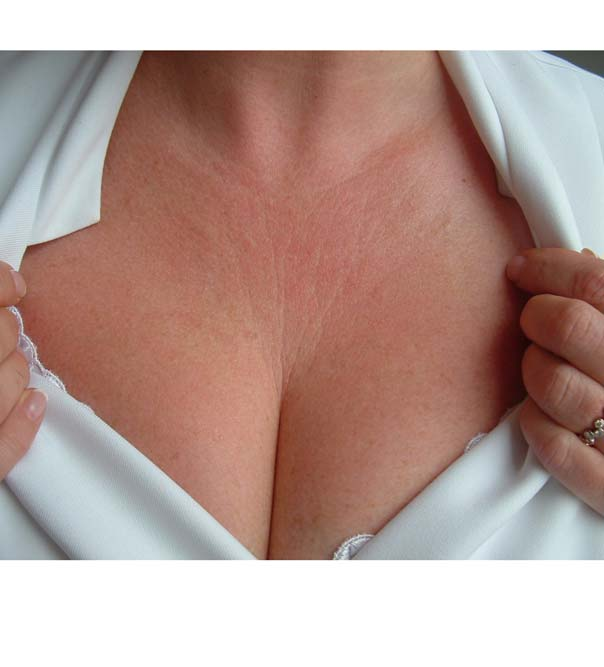 Loose, crepey skin on the chest before Dermaroller treatment