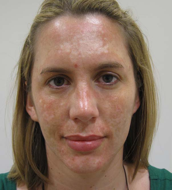 The face of a lady before Dermaroller treatment