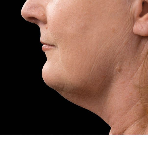 A lady's chin and neck after treatment for a double chin