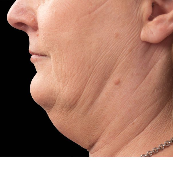 A lady's double chin before treatment