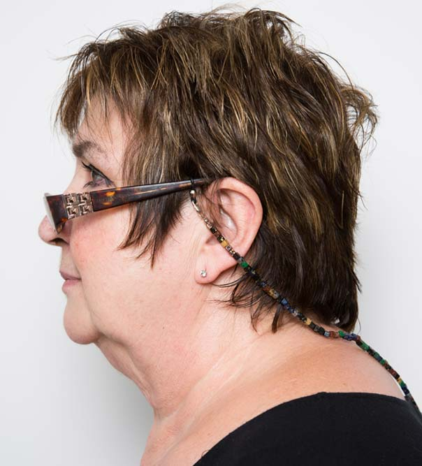Jenni Murray before double chin treatment