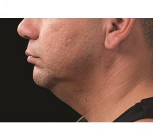 double chin fat removal CoolSulpting after