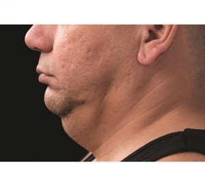 double chin fat removal CoolSulpting before