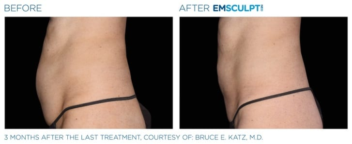 emsculpt muscle toning results women