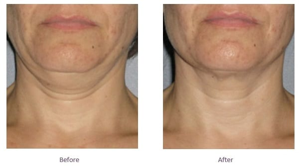 Neck Fat Before and After