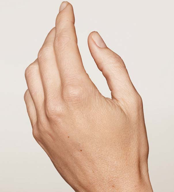 A lady's hand after hand rejuvenation treatment