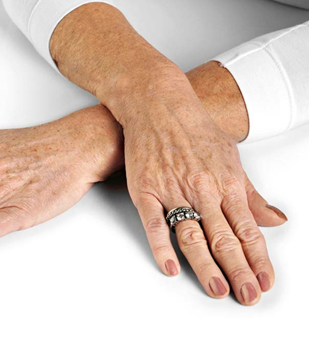A lady's hands before undergoing hand rejuvenation treatment