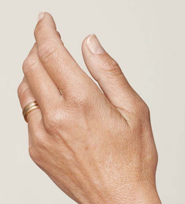 A lady's hand before having injections of Restylane treatment