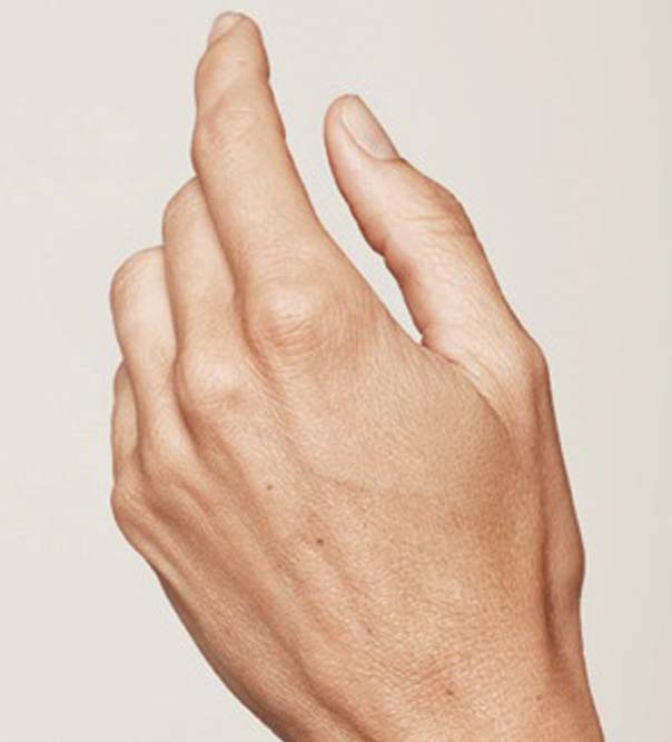 A hand before having hand rejuvenation treatment from Cosmetic Skin Clinic