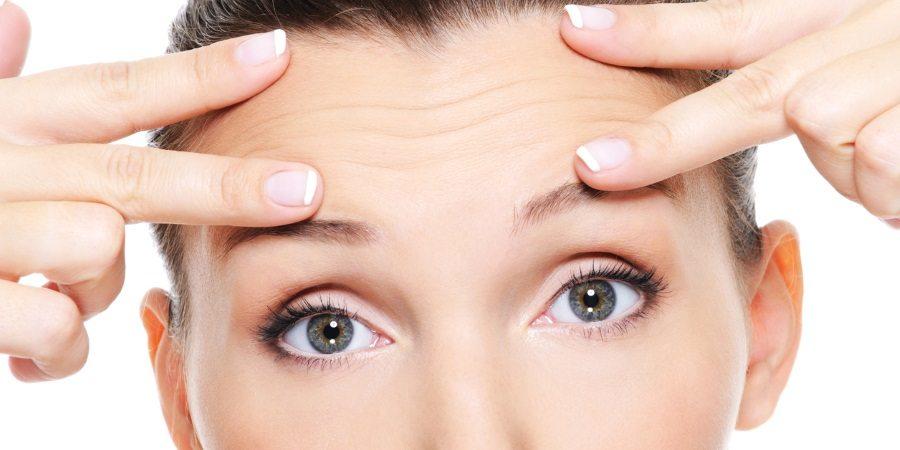 forehead lines botox