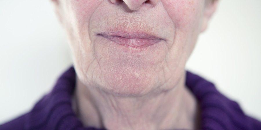 chin-wrinkles