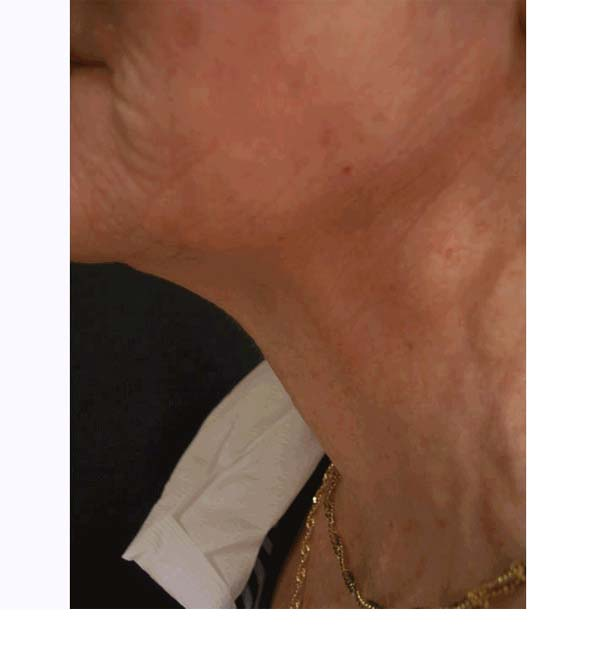A close up of a neck following INTRAcel treatment, reducing loose skin
