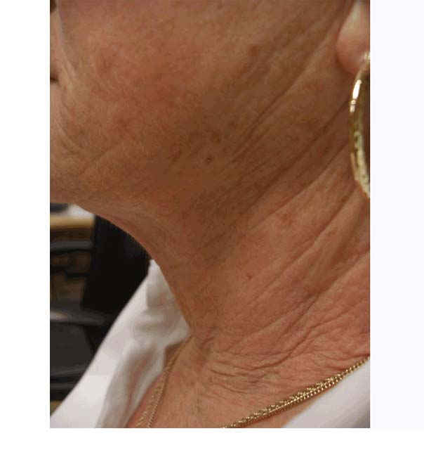 A close up of loose skin on the neck before treatment