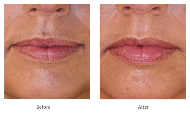 Juvederm Volbella Lip Filler Before and After