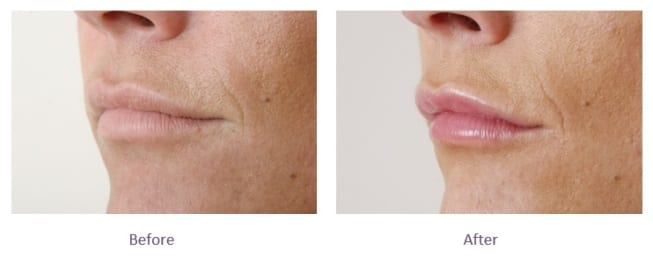 Lip Filler Top Lip Before and After