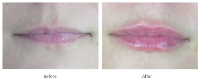 Lip Fillers Before and After Thin Lips