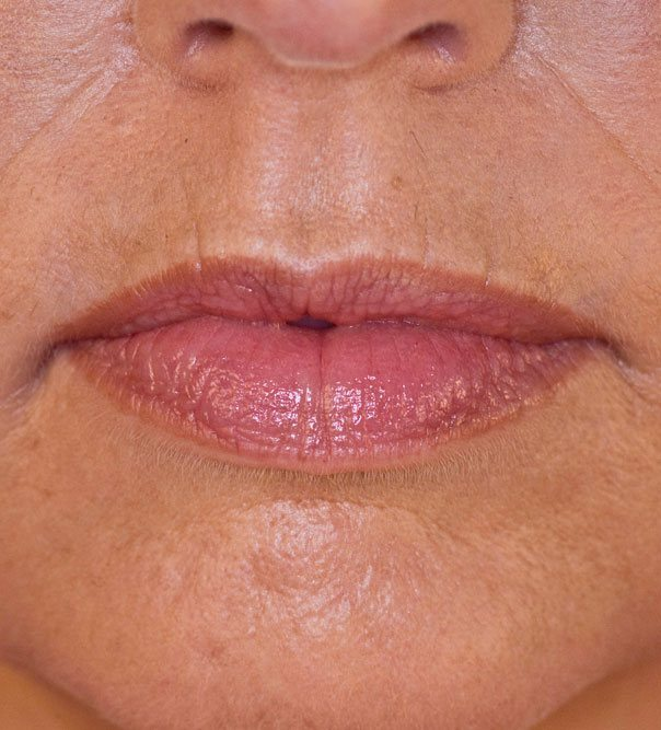 Fuller lips following Juvaderm Volbella dermal fillers