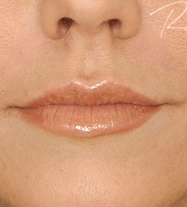 Full and redefined lips following lip filler treatment