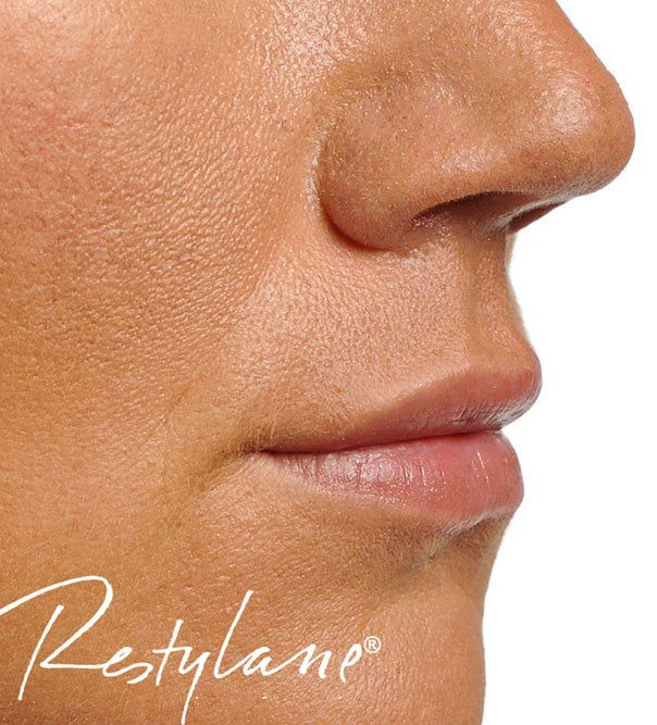 Full and hydrated lips following Restylane dermal fillers