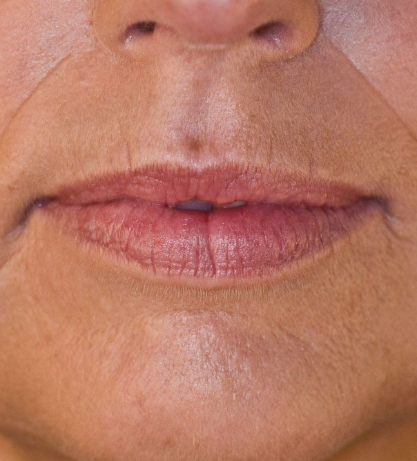 A close up of thin lips before having lip filler treatment