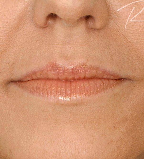 A close up of lips from the front before having lip filler treatment