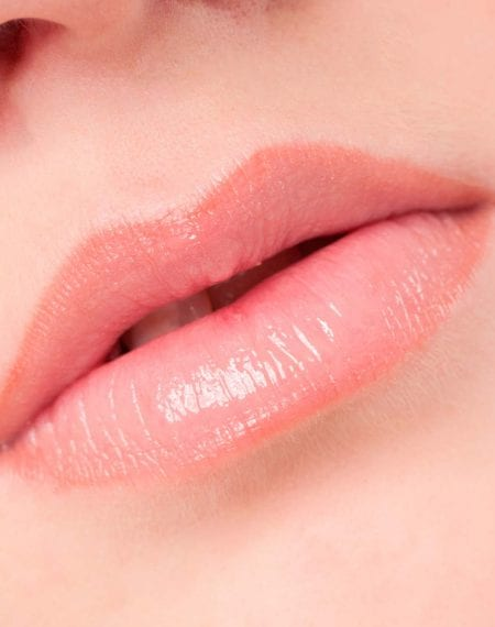 What can be done about Lip Wrinkles?