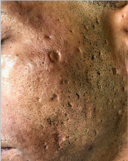 male acne scarring laser skin resurfacing halo before
