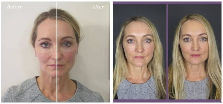 Mid Face Lift with Dermal Fillers before and after