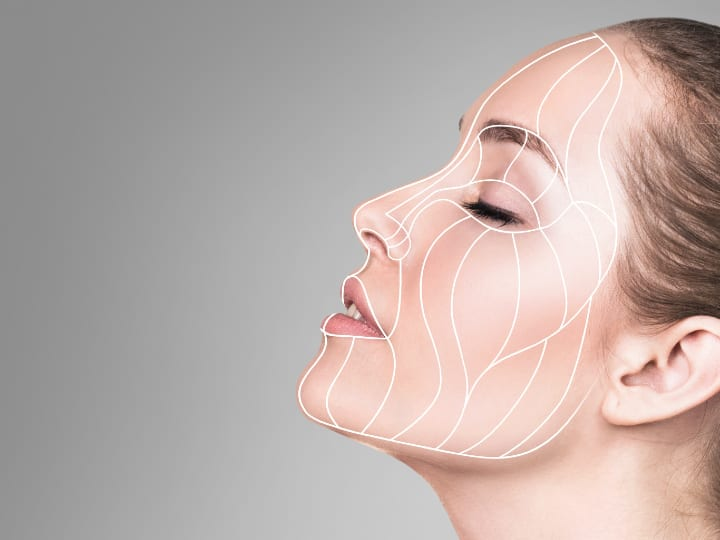 Mid Face Lift Using Fillers