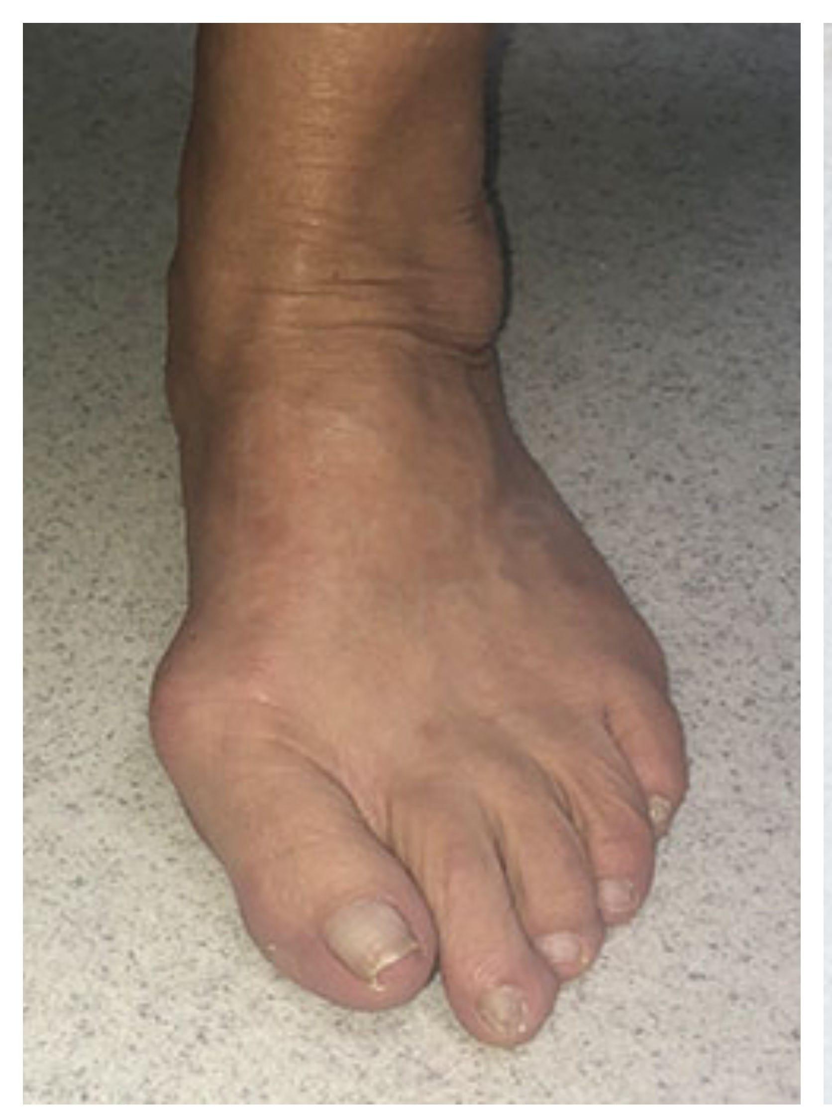 Bunions Treatment Before Minimally Invasive Surgery